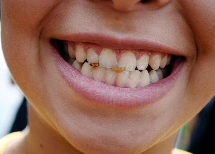 Wie sich Nährstoffmangel auf Kauapparat und Gesichtsform auswirkt und welche Ernährung empfohlen wird